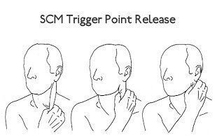 Trigger Points In Neck Cause Dizziness