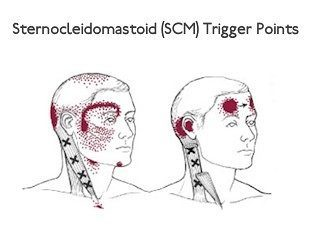 scm trigger points in neck